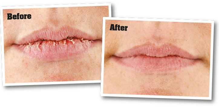 Dry, cracked lips before application of o'keeffe's lip repair, and lips after application of o'keeffe's lip repair.