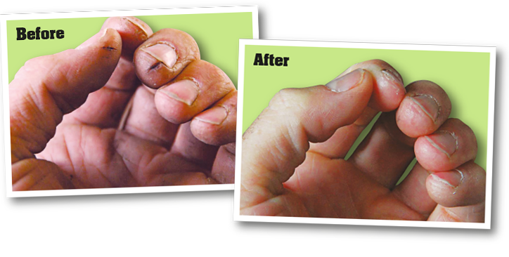 Before application of o'keeffe's working hands cream, and after application of o'keeffe's working hands cream
