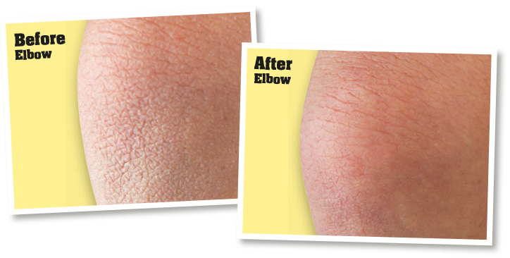 Skin before application of o'keeffe's skin repair, and skin after application of o'keeffe's skin repair
