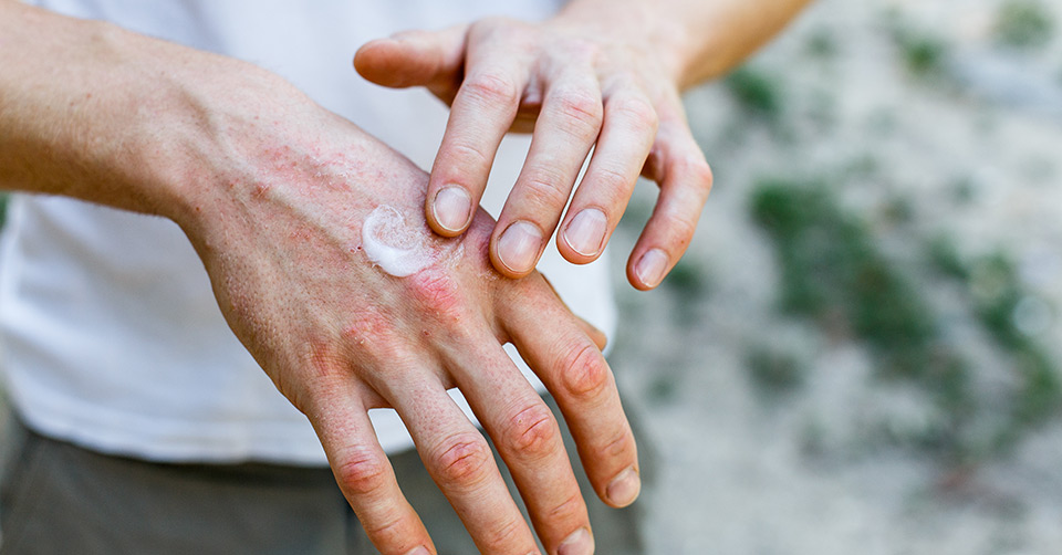 Dry Skin on the Hands
