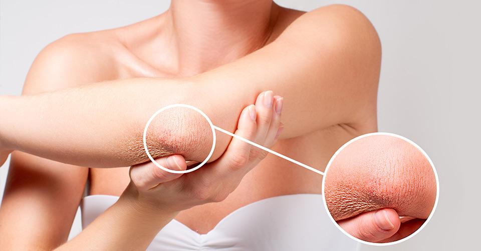 Dehydrated Skin – Hydration Tips