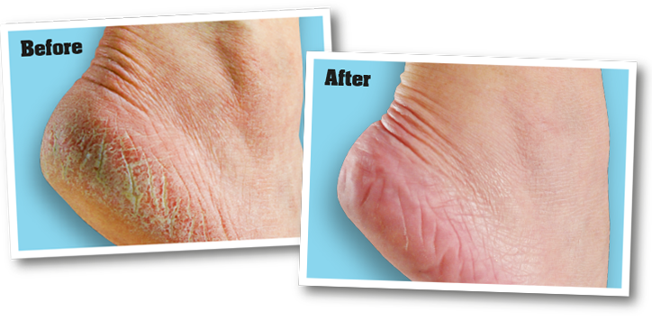 Dry, cracked feet before application of o'keeffe's foot cream, and feet after application of o'keeffe's foot cream