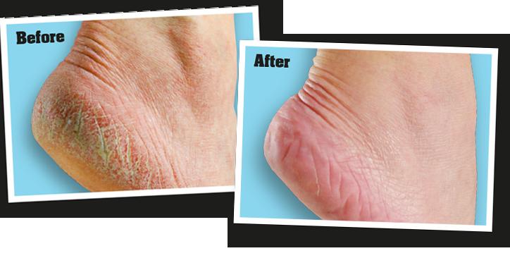 healthy-feet-BA.png