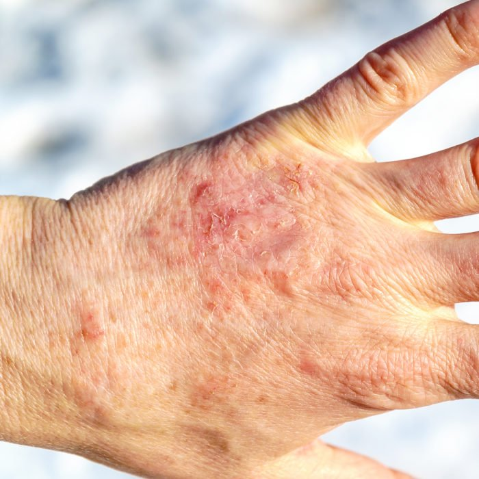 How to avoid dry hands in winter - O'Keeffe's top tips