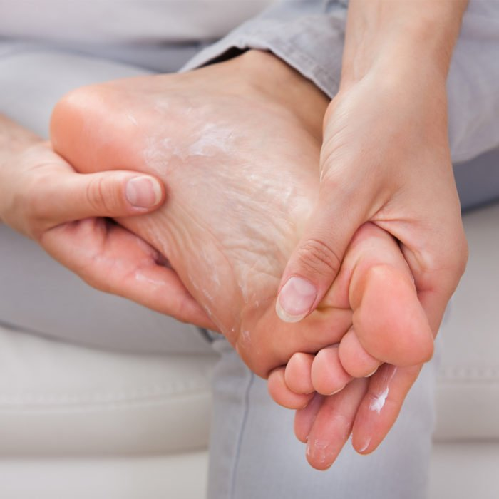 • Dry skin on feet - causes, prevention and relief